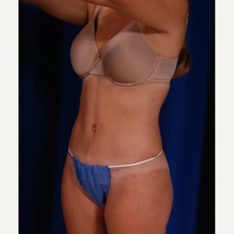 25-34 year old woman treated with Tummy Tuck Revision after 2132175