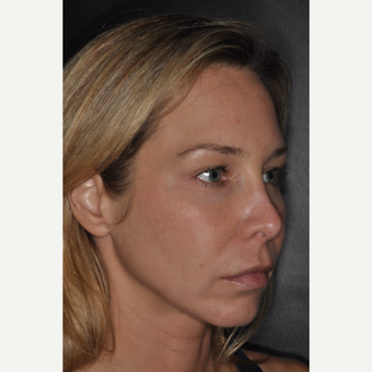 35-44 year old woman treated with Revision Rhinoplasty 2 weeks post-op before 3452226