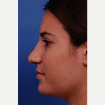 18-24 year old woman treated with Rhinoplasty before 3179891