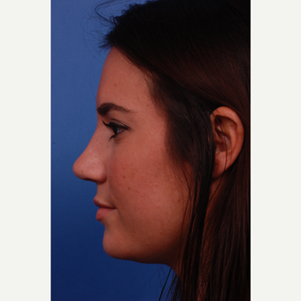 18-24 year old woman treated with Rhinoplasty after 3179891