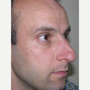 35-44 year old man treated with Septoplasty before 2974519