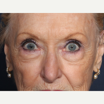 75 and up year old woman treated with Eyelid Surgery (view 1 of 2) before 3710612