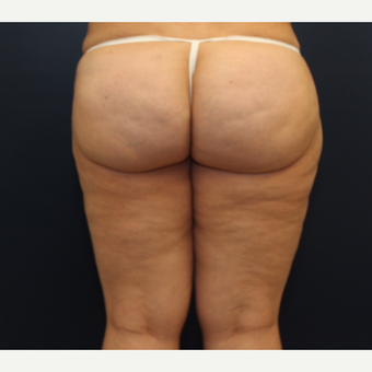 45-54 year old woman treated with Cellulaze before 3142564