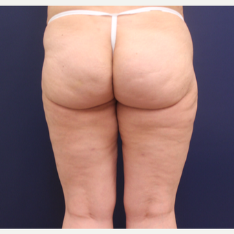 45-54 year old woman treated with Cellulaze after 3142564