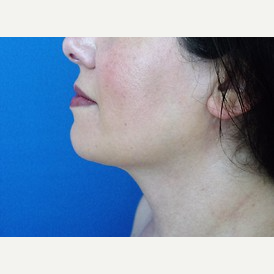 Neck Liposuction after 2989333