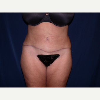 45-54 year old woman treated with Tummy Tuck after 3487403