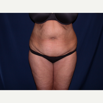 45-54 year old woman treated with Tummy Tuck before 3487403