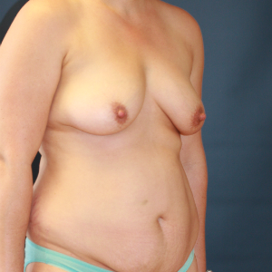 40 year old mom before and after breast augment, tummy tuck, and liposuction flanks before 3085670