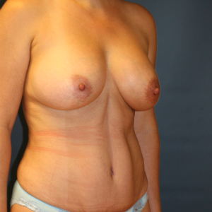 40 year old mom before and after breast augment, tummy tuck, and liposuction flanks after 3085670
