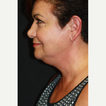 "54 year old woman treated with CoolSculpting of the Submental Area (""Double Chin"") before 3167222"