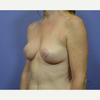 55-64 year old woman treated with Breast Lift after 3420127
