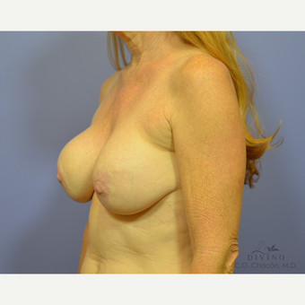 55-64 year old woman treated with Breast Lift before 3420127