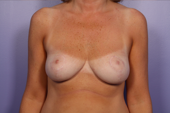 Breast Reduction  after 302525