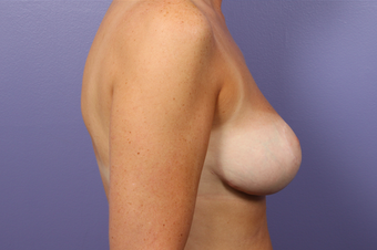 Breast Reduction  302525