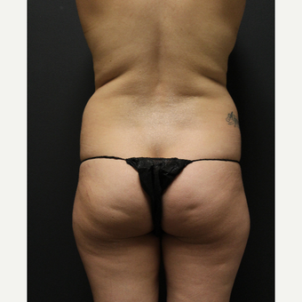 35-44 year old woman treated with Smart Lipo before 3286921
