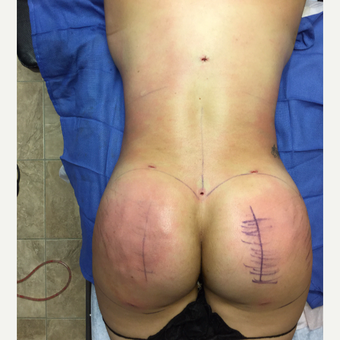 35-44 year old woman treated with Smart Lipo after 3286921