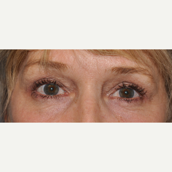 55-64 year old woman treated with Eyelid Surgery after 3056325