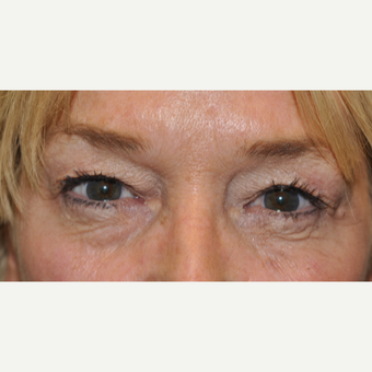 55-64 year old woman treated with Eyelid Surgery before 3056325