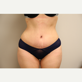 25-34 year old woman treated with Tummy Tuck after 3651950