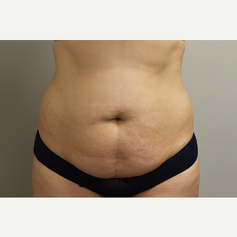 25-34 year old woman treated with Tummy Tuck before 3651950