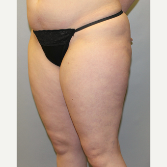 35-44 year old woman treated with Liposuction after 3589597