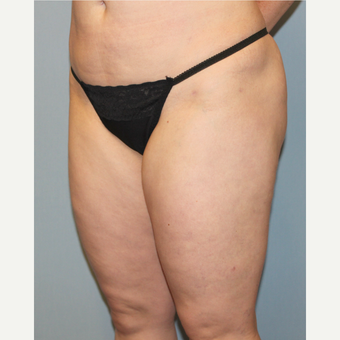 35-44 year old woman treated with Liposuction before 3589597
