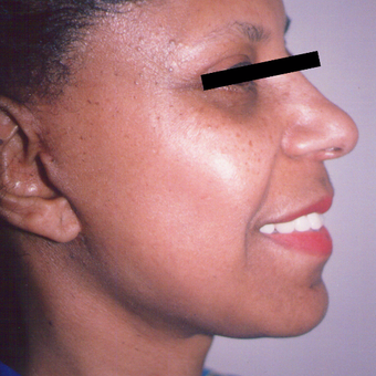 45-54 year old woman treated with Facelift after 3542918