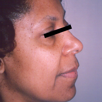 45-54 year old woman treated with Facelift before 3542918