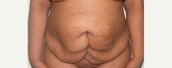 35-44 year old man treated with Tummy Tuck before 2522458