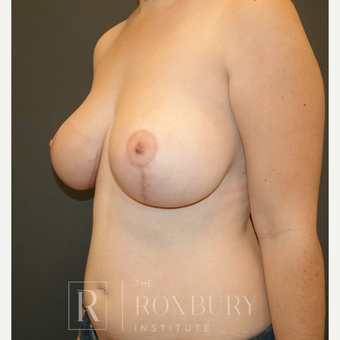 45-54 year old woman treated with Breast Lift after 3844272