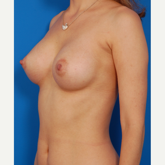 25-34 year old woman treated with Breast Augmentation after 3576921