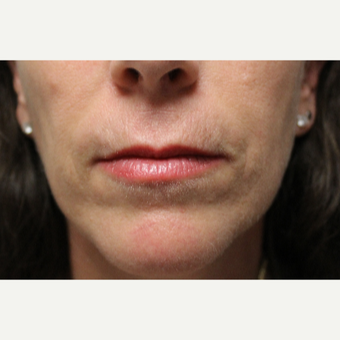 45-54 year old woman treated with Restylane Silk after 3267427