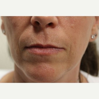 45-54 year old woman treated with Restylane Silk before 3267427