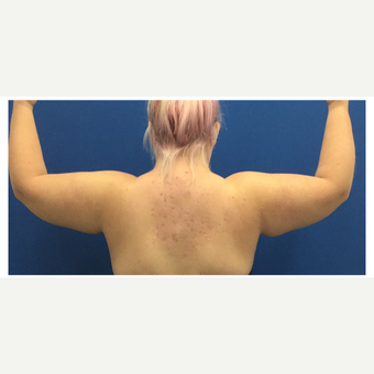 18-24 year old woman treated with Tumescent Liposuction before 3495469