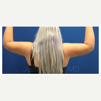 18-24 year old woman treated with Tumescent Liposuction after 3495469
