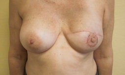 Breast Reconstruction after 572279