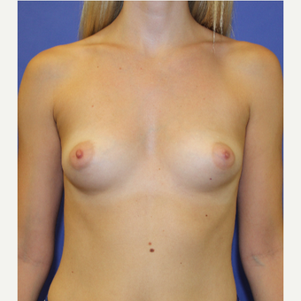 25-34 year old woman treated with Breast Augmentation before 3333332