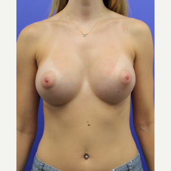 25-34 year old woman treated with Breast Augmentation after 3333332