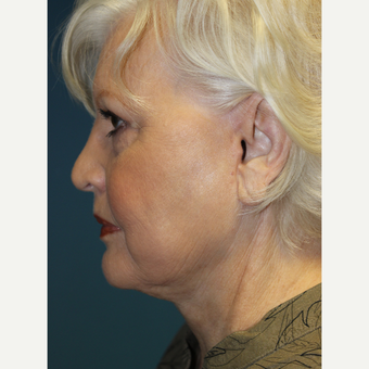 65-74 year old woman treated with Facelift after 3701999