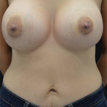25-34 year old woman treated with Nipple Surgery after 3843870