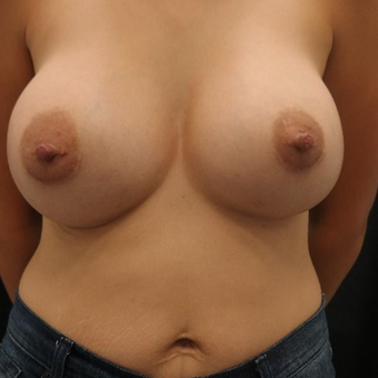25-34 year old woman treated with Nipple Surgery before 3843870