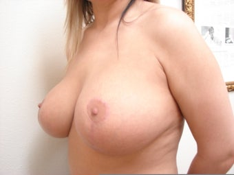 Breast Lift with Implants after 1158628