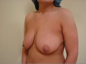 Breast Lift with Implants before 1158628