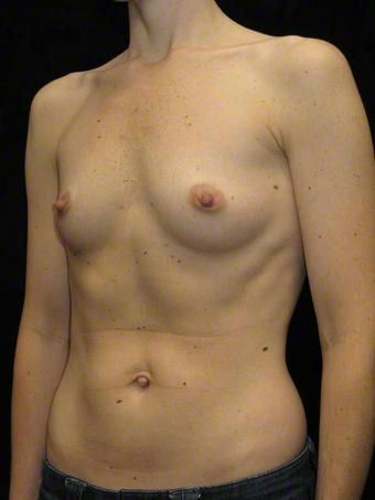37 year old woman treated with Breast Augmentation for Fullness, Slight Asymmetry before 3103569