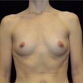 37 year old woman treated with Breast Augmentation for Fullness, Slight Asymmetry 3103569