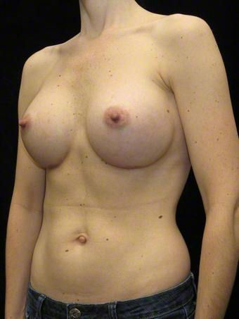 37 year old woman treated with Breast Augmentation for Fullness, Slight Asymmetry after 3103569