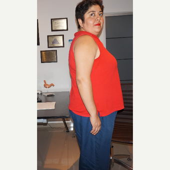 35-44 year old woman treated with Weight Loss before 3150405