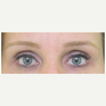 Female Treated with Brow Lift after 1984365