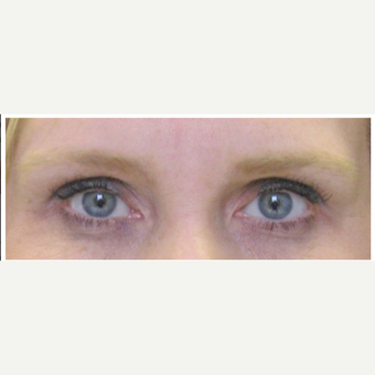 Female Treated with Brow Lift before 1984365