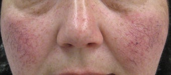 56 yeard old Female with facial veins